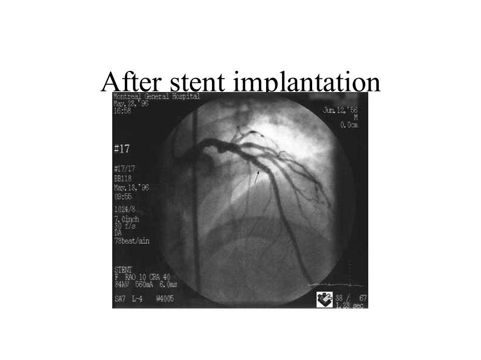 After stent implantation