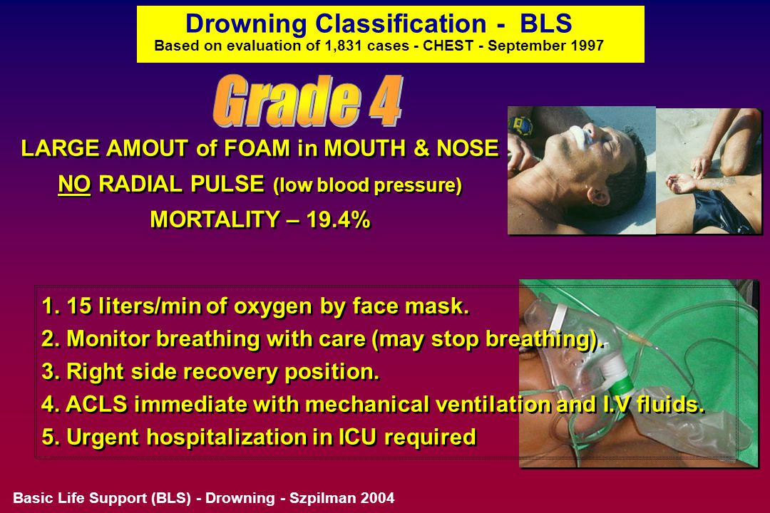 Drowning Classification - BLS Based on evaluation of 1,831 cases - CHEST - September 1997 LARGE AMOUNT of FOAM in MOUTH & NOSE RADIAL PULSE PALPABLE (normal blood pressure) MORTALITY - 5.2% LARGE AMOUNT of FOAM in MOUTH & NOSE RADIAL PULSE PALPABLE (normal blood pressure) MORTALITY - 5.2% 1.