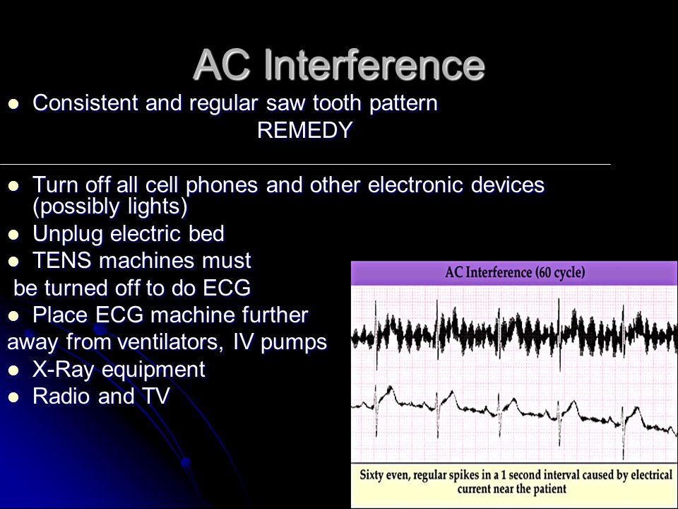 AC Interference Consistent and regular saw tooth pattern Consistent and regular saw tooth patternREMEDY Turn off all cell phones and other electronic