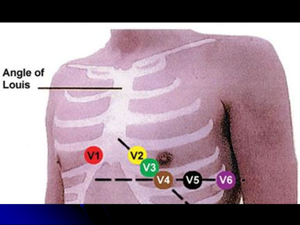 Chest Lead Placement All chest leads are labelled v1, v2, v3,...v6.