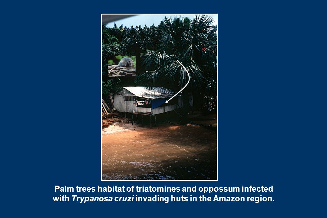 Palm trees habitat of triatomines and oppossum infected with Trypanosa cruzi invading huts in the Amazon region.