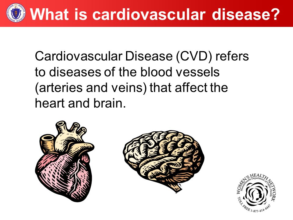 Cardiovascular Disease (CVD) refers to diseases of the blood vessels (arteries and veins) that affect the heart and brain.
