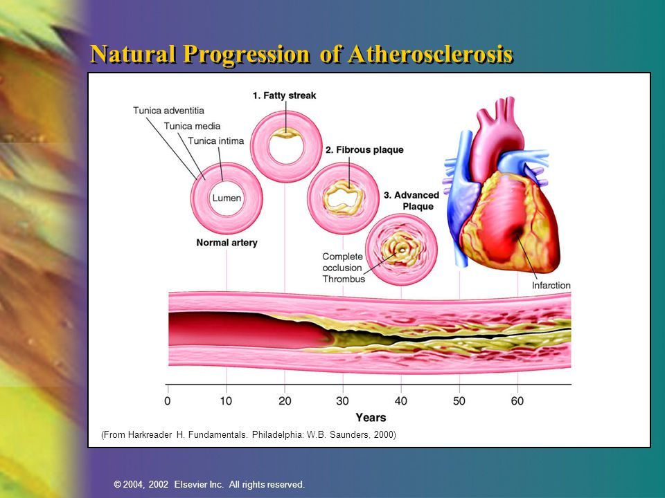 © 2004, 2002 Elsevier Inc. All rights reserved. Natural Progression of Atherosclerosis (From Harkreader H. Fundamentals. Philadelphia: W.B. Saunders,
