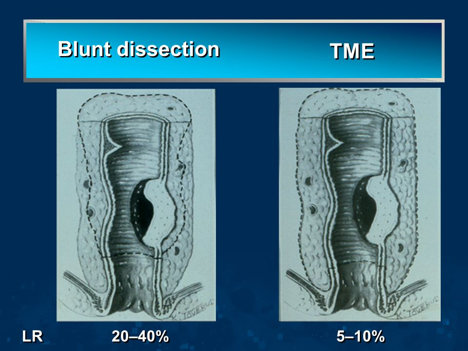 5–10% Blunt dissection TME LR 20–40%