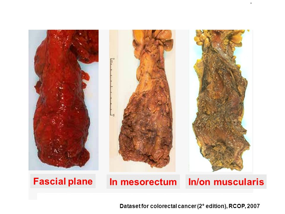 Fascial plane In mesorectumIn/on muscularis Dataset for colorectal cancer (2° edition), RCOP, 2007