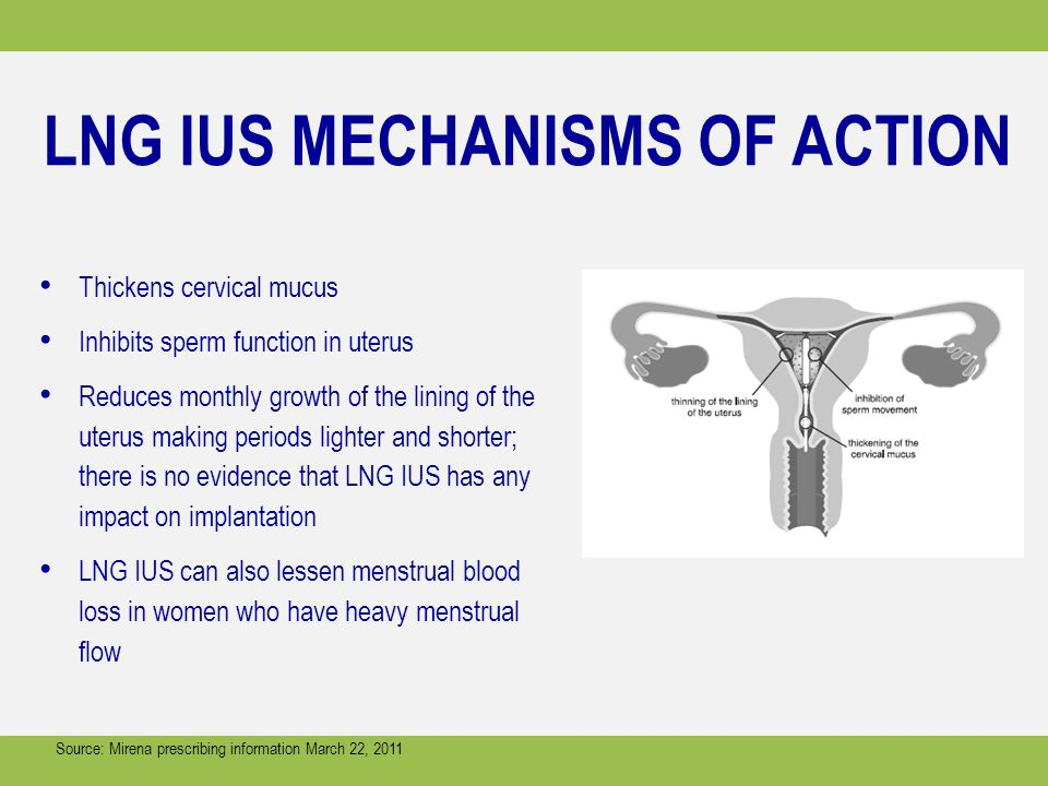 LNG IUS MECHANISMS OF ACTION Thickens cervical mucus Inhibits sperm function in uterus Reduces monthly growth of the lining of the uterus making periods lighter and shorter; there is no evidence that LNG IUS has any impact on implantation LNG IUS can also lessen menstrual blood loss in women who have heavy menstrual flow Source: Mirena prescribing information March 22, 2011