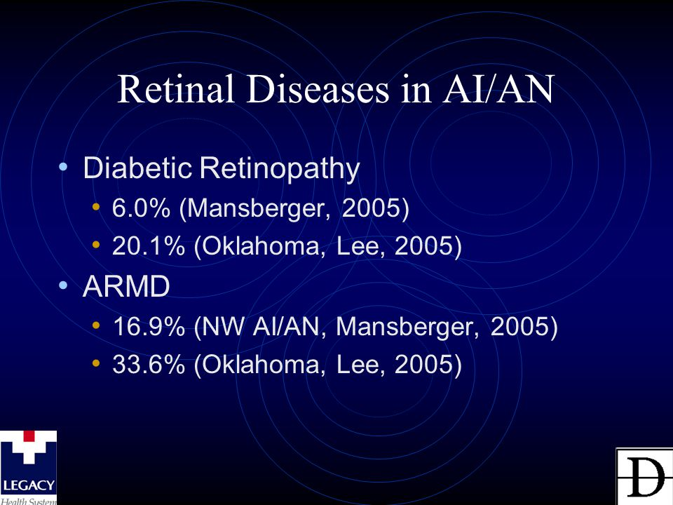 Retinal Diseases in AI/AN Diabetic Retinopathy 6.0% (Mansberger, 2005) 20.1% (Oklahoma, Lee, 2005) ARMD 16.9% (NW AI/AN, Mansberger, 2005) 33.6% (Oklahoma, Lee, 2005)