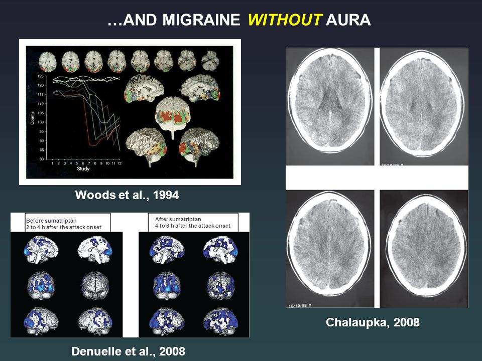 Woods et al., 1994 Chalaupka, 2008 Denuelle et al., 2008 Before sumatriptan 2 to 4 h after the attack onset After sumatriptan 4 to 6 h after the attack onset …AND MIGRAINE WITHOUT AURA