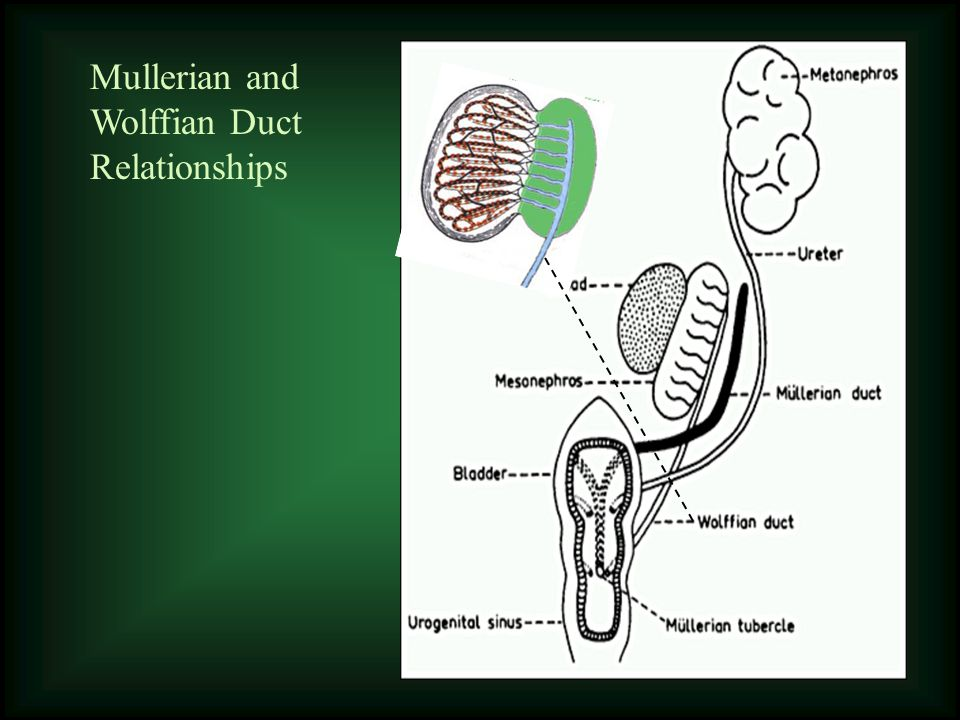 Mullerian and Wolffian Duct Relationships