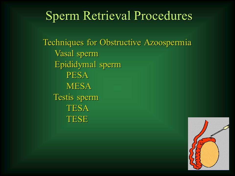 Sperm Retrieval Procedures Techniques for Obstructive Azoospermia Vasal sperm Epididymal sperm PESAMESA Testis sperm TESATESE