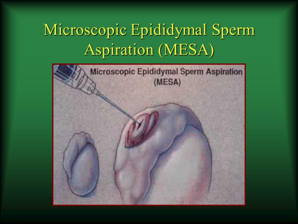 Microscopic Epididymal Sperm Aspiration (MESA)