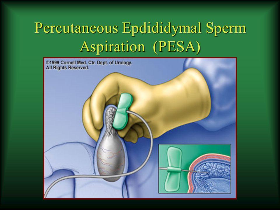 Percutaneous Epdididymal Sperm Aspiration (PESA)