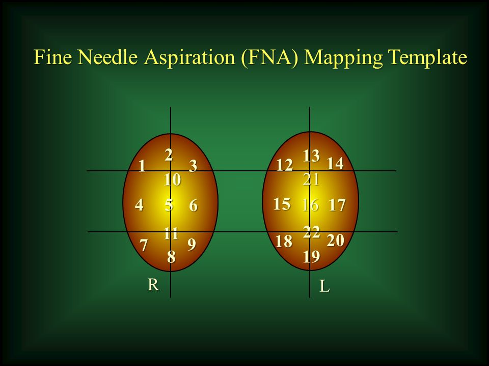 Fine Needle Aspiration (FNA) Mapping Template 1 2 3 6 54 9 8 7 11 10 12 13 14 1716 15 20 19 18 22 21 R L