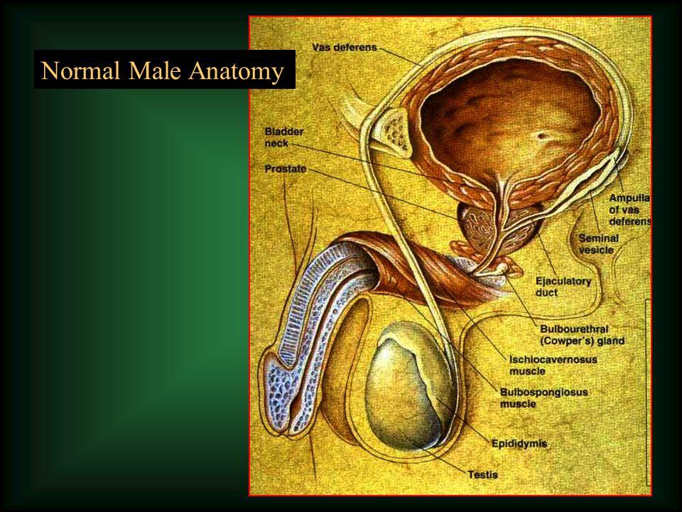 Obstructive Non-obstructive The Problem of Azoospermia RepairICSIICSI 5% of infertile men