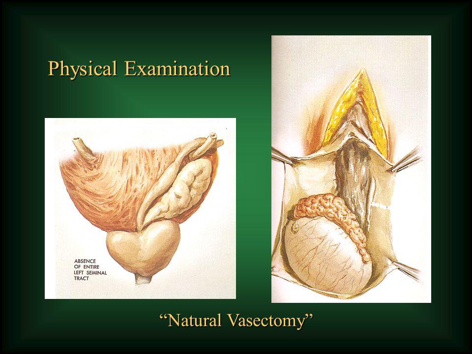 Testicular (TESA, TESE, MicrodissectionTESE) Nonobstructive Azoospermia Surgeon beware !!