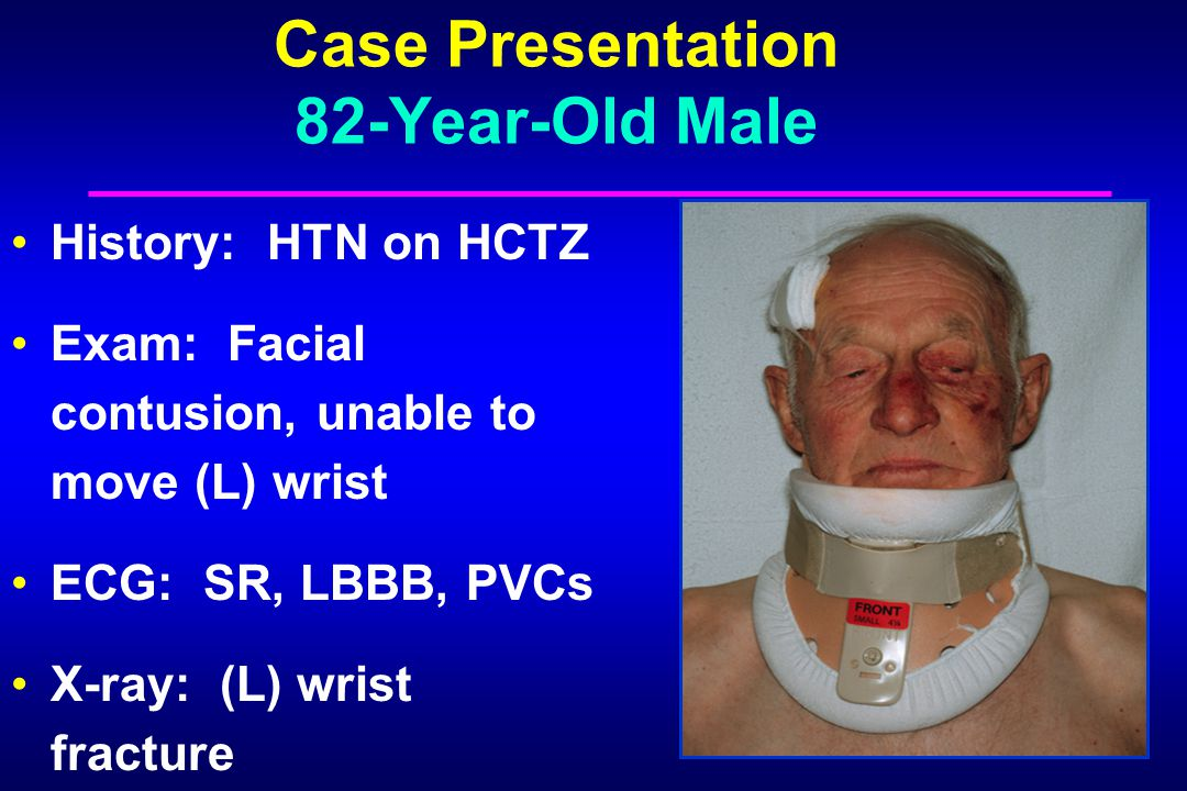 Case Presentation 82-Year-Old Male History: HTN on HCTZ Exam: Facial contusion, unable to move (L) wrist ECG: SR, LBBB, PVCs X-ray: (L) wrist fracture