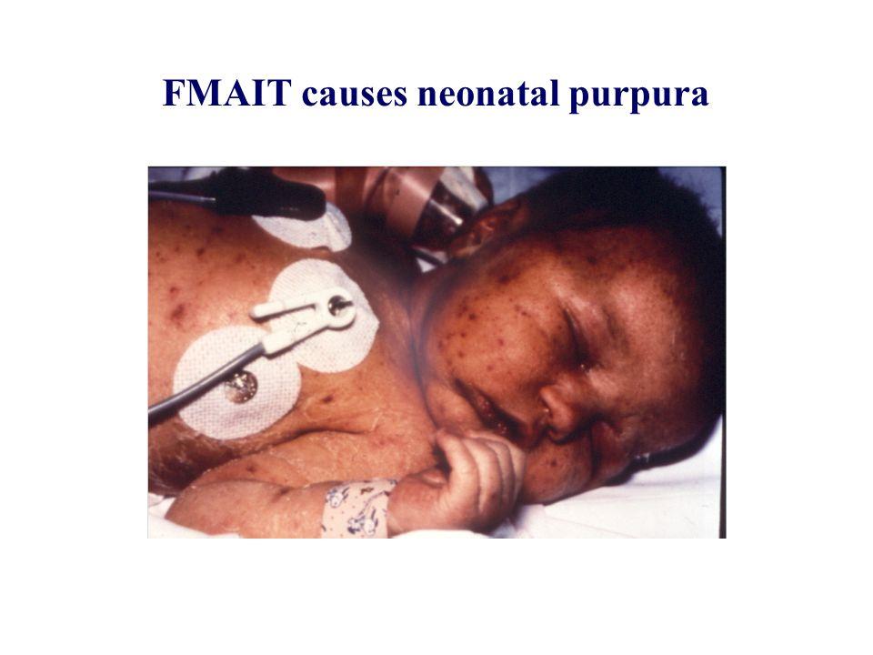 FMAIT causes neonatal purpura