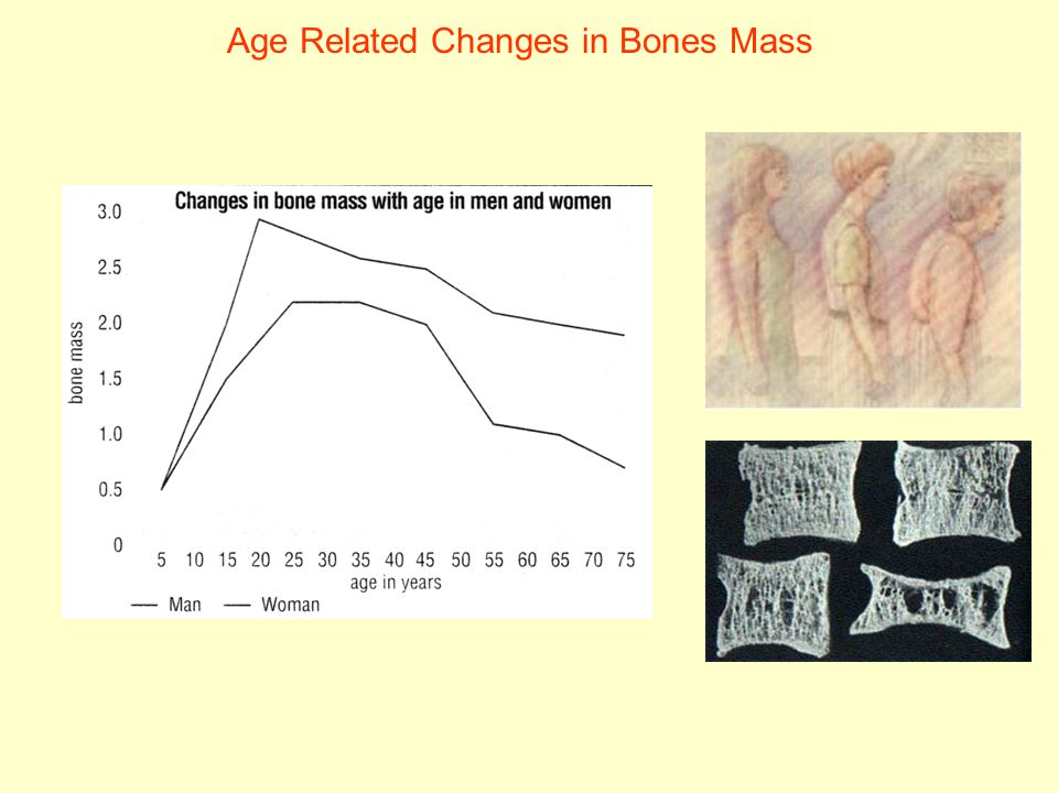 Age Related Changes in Bones Mass