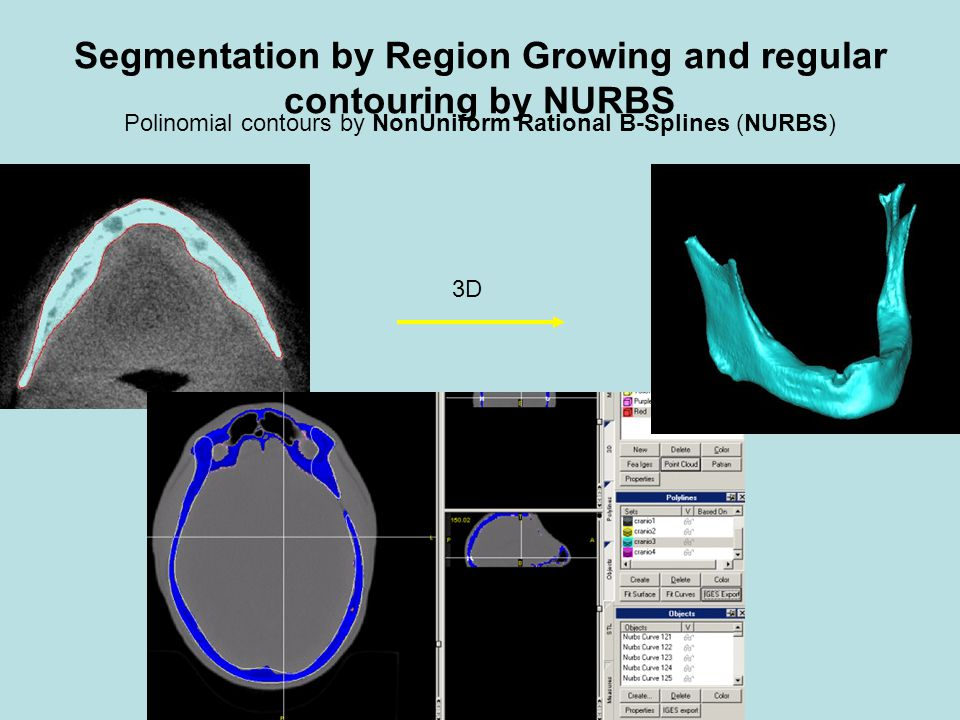 Segmentation by Region Growing and regular contouring by NURBS Polinomial contours by NonUniform Rational B-Splines (NURBS) 3D
