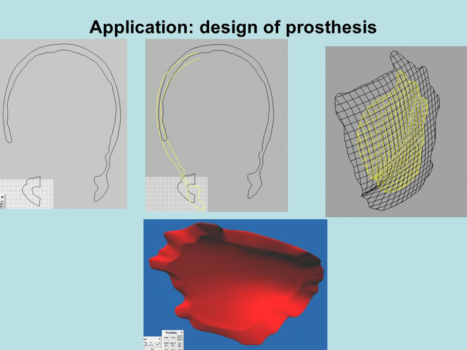 Application: design of prosthesis