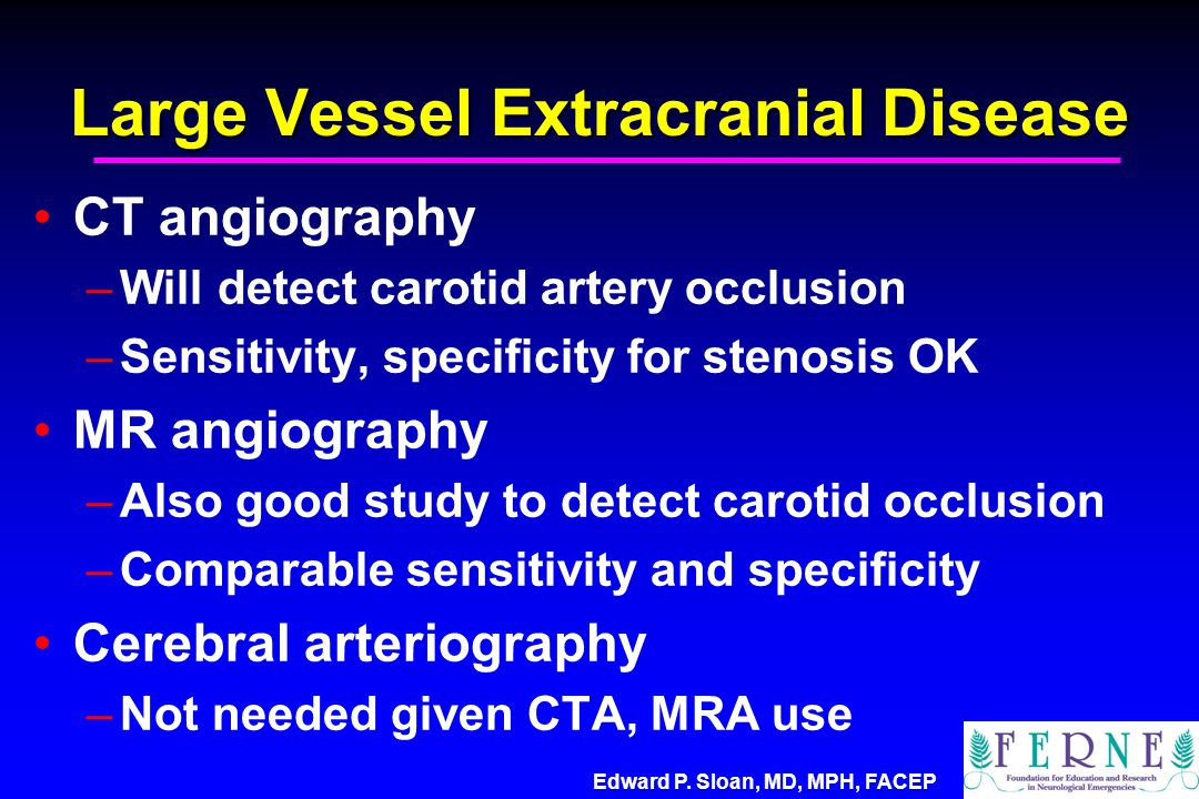 Edward P. Sloan, MD, MPH, FACEP Large Vessel Extracranial Disease CT angiography –Will detect carotid artery occlusion –Sensitivity, specificity for s