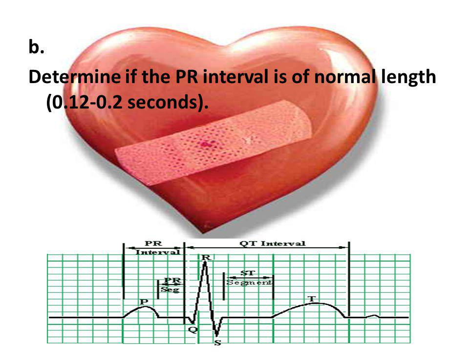 b. Determine if the PR interval is of normal length (0.12-0.2 seconds).