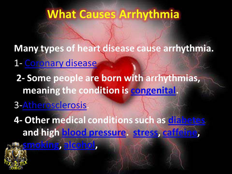 Many types of heart disease cause arrhythmia. 1- Coronary diseaseCoronary disease 2- Some people are born with arrhythmias, meaning the condition is c