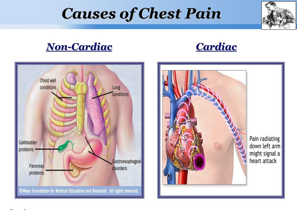 Page  3 Causes of Chest Pain CardiacNon-Cardiac