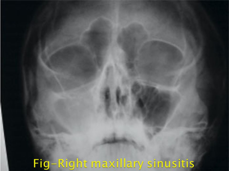 The best way to diagnose sinusitis is through physical examination and good medical history including all symptoms.  X-rays and CT (computed tomogr