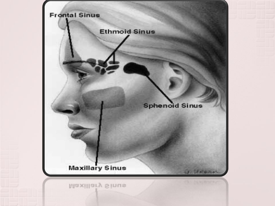 AETIOLOGY: Isolated involvement of sphenoid sinus is rare.