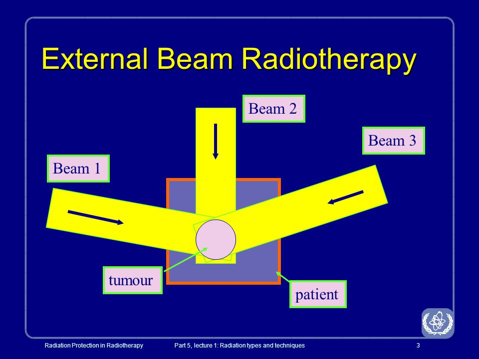 Radiation Protection in RadiotherapyPart 5, lecture 1: Radiation types and techniques4 External Beam Therapy (EBT) l Non-invasive l Target localization important and beam placement may be tricky l Usually multiple beams to place target in the focus of all beams patient Single beam Three coplanar beam Multiple non- coplanar beams