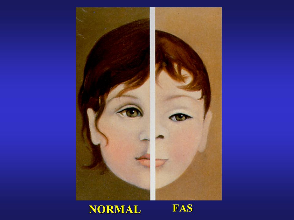 Full-blown fetal alcohol syndrome (FAS) represents only the tip of the iceberg relative to all alcohol-related birth defects (ARBDs).