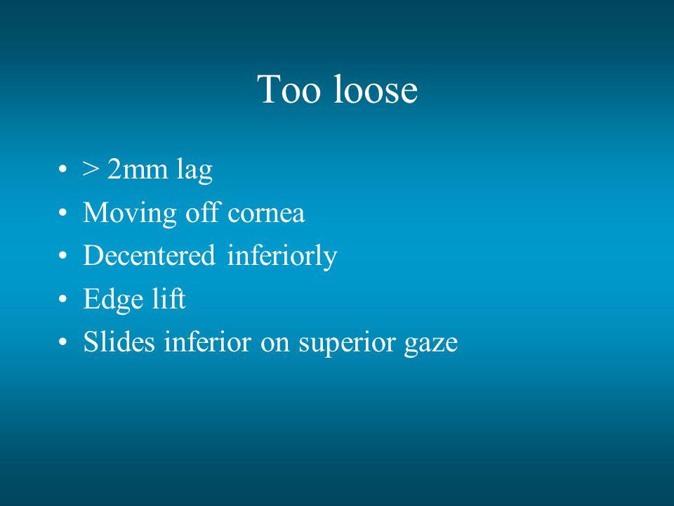 Too loose > 2mm lag Moving off cornea Decentered inferiorly Edge lift Slides inferior on superior gaze