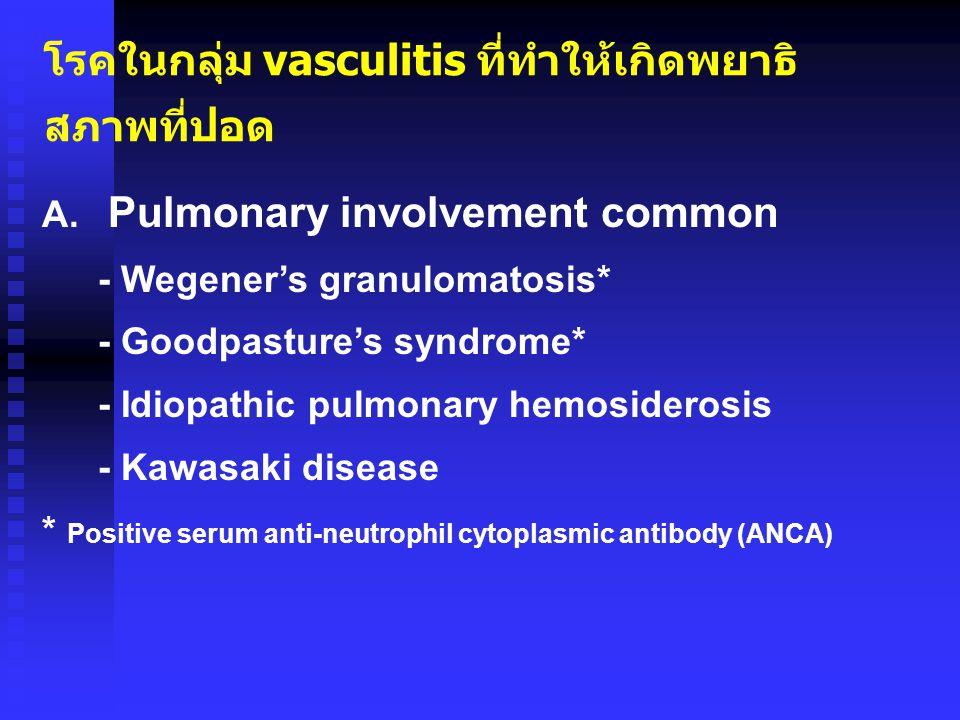 โรคในกลุ่ม vasculitis ที่ทำให้เกิดพยาธิ สภาพที่ปอด A. Pulmonary involvement common - Wegener's granulomatosis* - Goodpasture's syndrome* - Idiopathic
