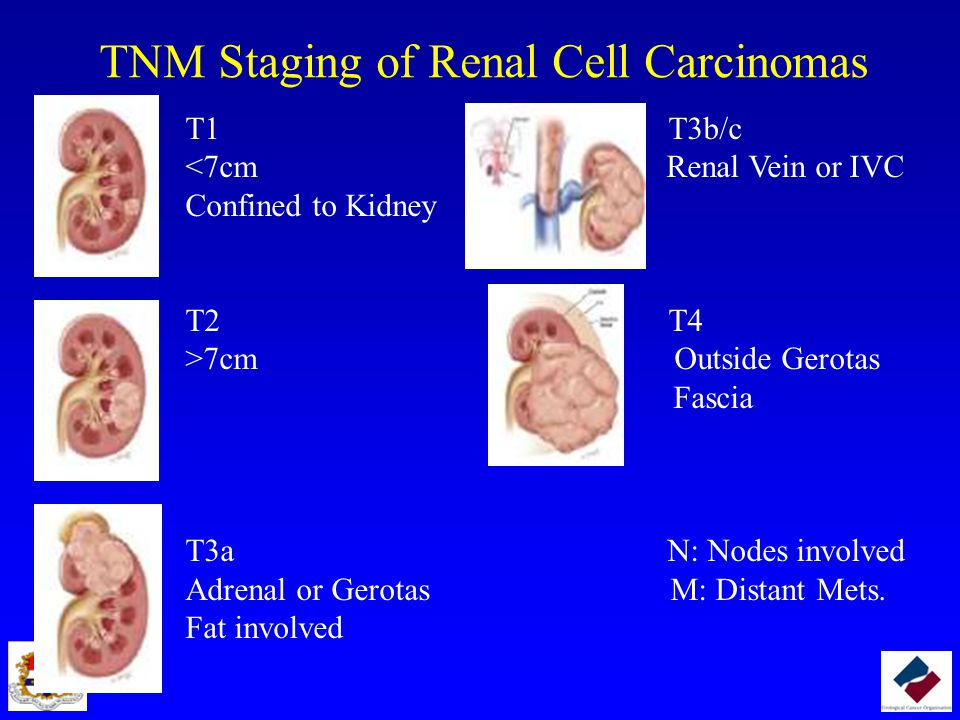 TNM Staging of Renal Cell Carcinomas T1 T3b/c <7cm Renal Vein or IVC Confined to Kidney T2 T4 >7cm Outside Gerotas Fascia T3a N: Nodes involved Adrenal or Gerotas M: Distant Mets.