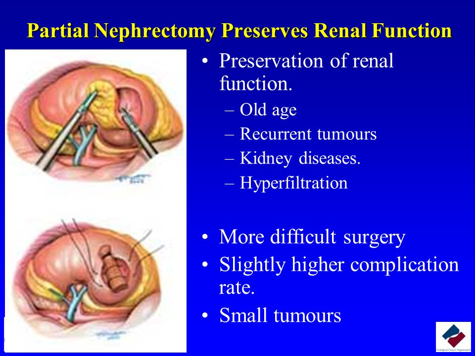 Partial Nephrectomy Preserves Renal Function Preservation of renal function.