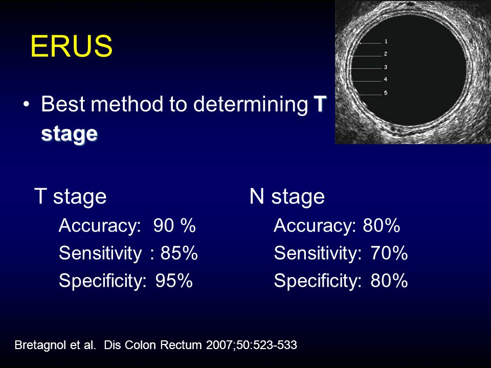ERUS T stageBest method to determining T stage T stage Accuracy: 90 % Sensitivity : 85% Specificity: 95% N stage Accuracy: 80% Sensitivity: 70% Specificity: 80% Bretagnol et al.