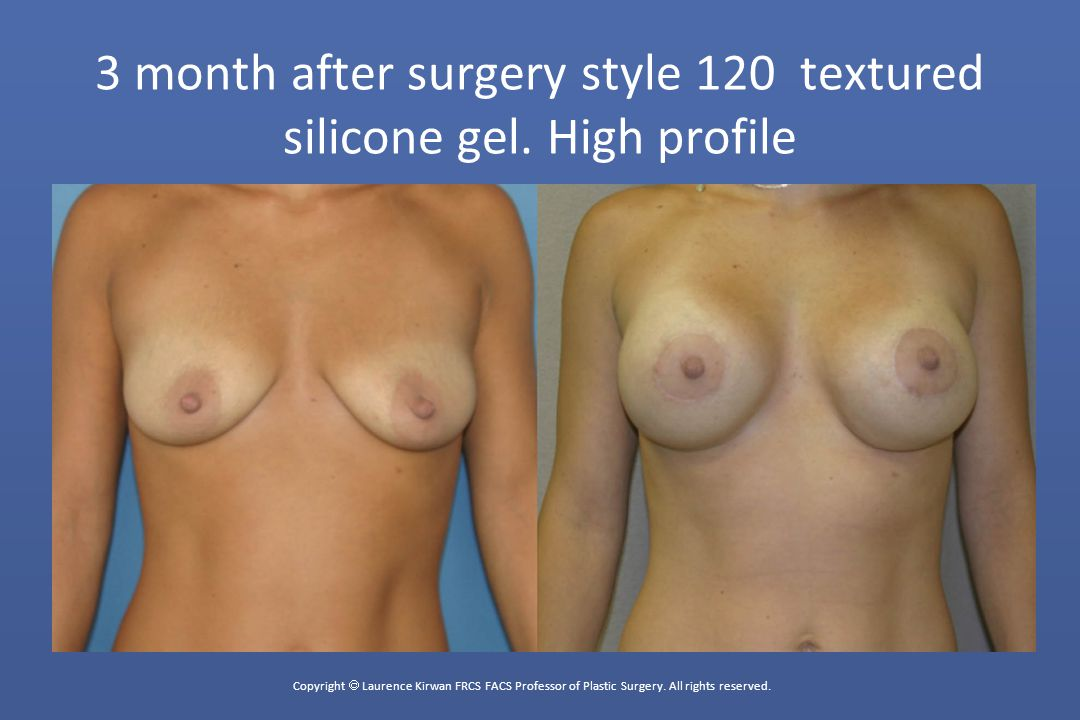 3 month after surgery style 120 textured silicone gel. High profile