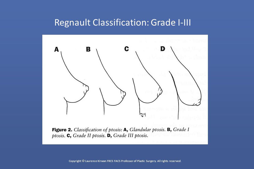 Regnault Classification: Grade I-III
