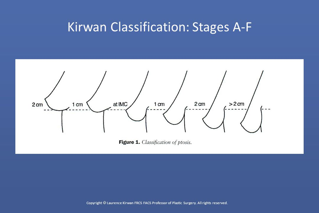 Copyright  Laurence Kirwan FRCS FACS Professor of Plastic Surgery.