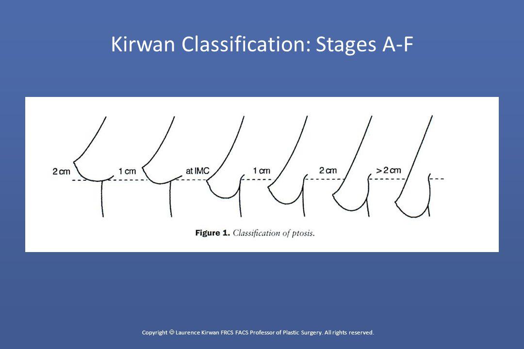 Copyright  Laurence Kirwan FRCS FACS Professor of Plastic Surgery.