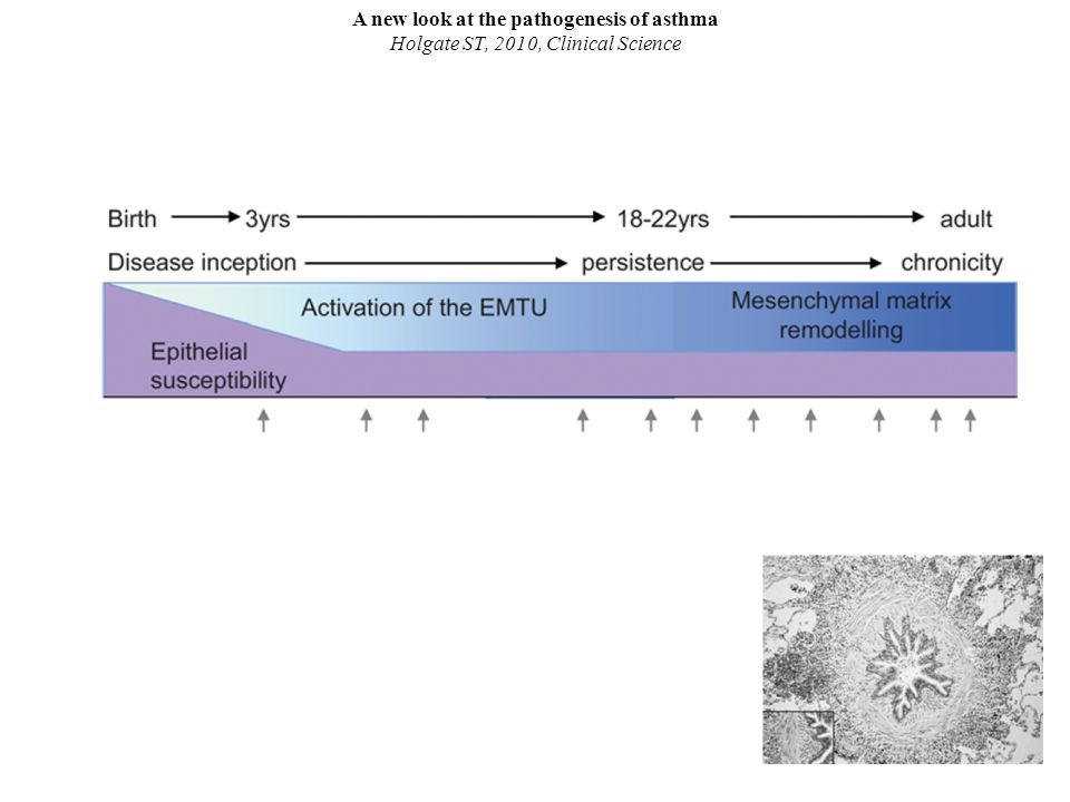 A new look at the pathogenesis of asthma Holgate ST, 2010, Clinical Science