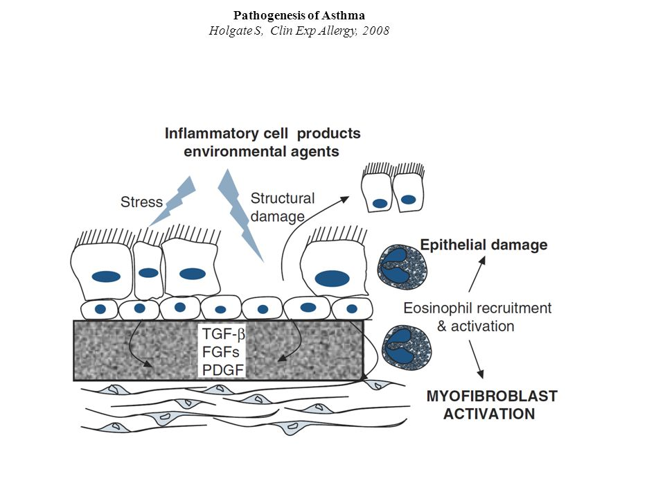 Holt P, Curr Op Allergy Clin Immunol, 2007 ITS