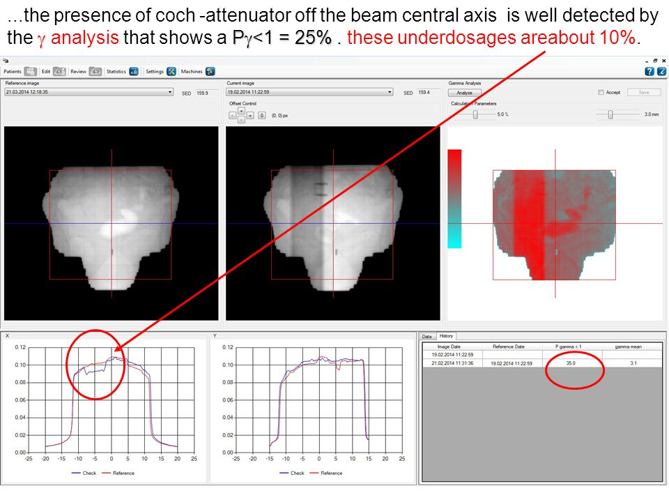  P  <1 = 25%....the presence of coch -attenuator off the beam central axis is well detected by the  analysis that shows a P  <1 = 25%.