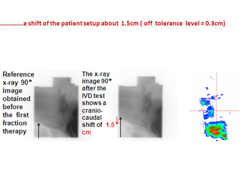 …………..a shift of the patient setup about 1.5cm ( off tolerance level = 0.3cm)