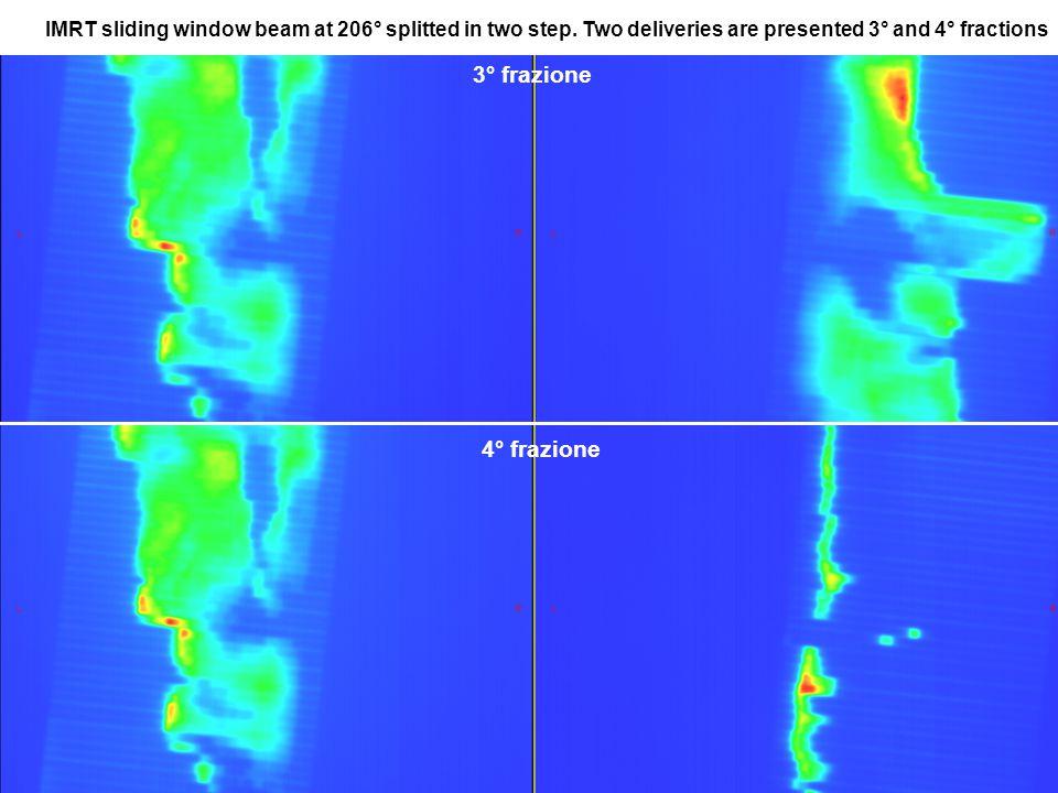 3° frazione 4° frazione IIMRT sliding window beam at 206° splitted in two step.