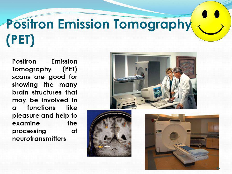 Positron Emission Tomography (PET) Positron Emission Tomography (PET) scans are good for showing the many brain structures that may be involved in a f