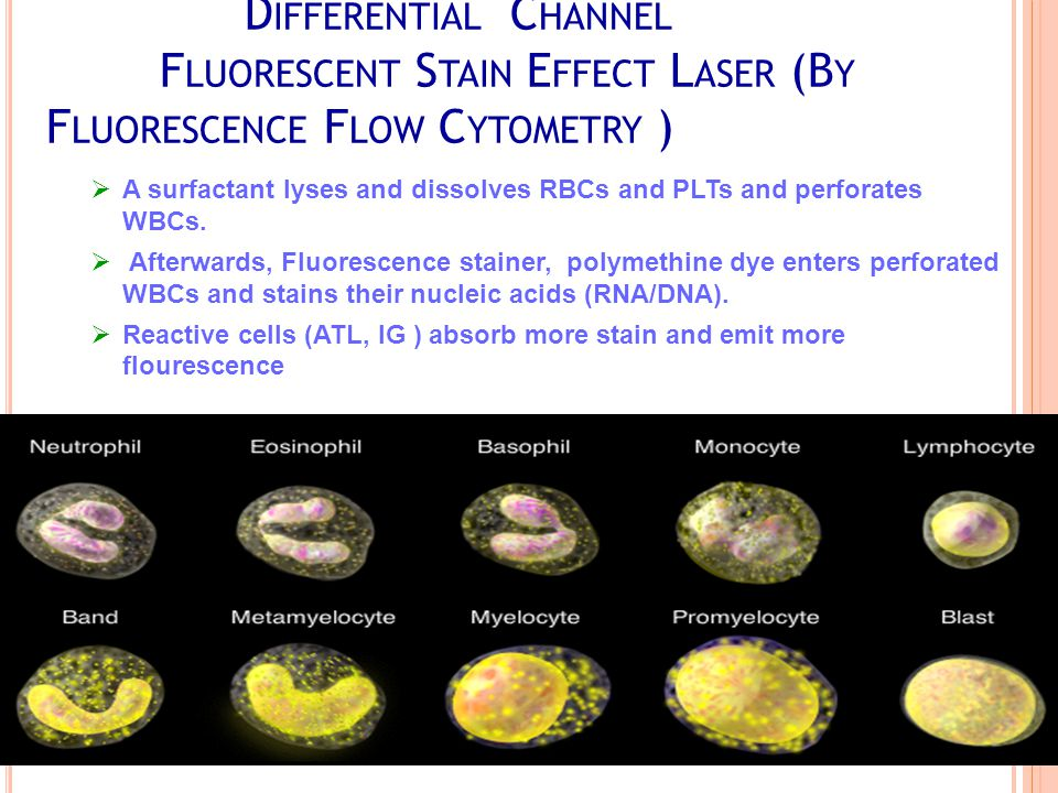D IFFERENTIAL C HANNEL F LUORESCENT S TAIN E FFECT L ASER (B Y F LUORESCENCE F LOW C YTOMETRY )  A surfactant lyses and dissolves RBCs and PLTs and perforates WBCs.