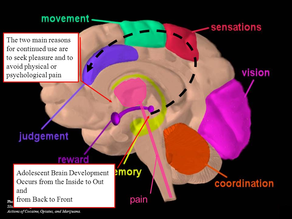 12 Photo courtesy of the NIDA Web site. From A Slide Teaching Packet: The Brain and the Actions of Cocaine, Opiates, and Marijuana. pain Adolescent Br