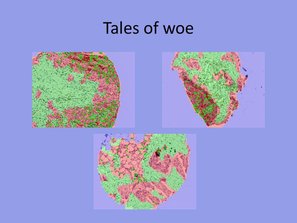 Segmentation algorithms fail on some fraction of histospots Total histospots evaluated618 Pre-algorithmic failures Spot fell off Unsuitable tissue (e.g., colon or fat only) 37 77 Tissue segmentation failures Tumor interpreted as stroma Stroma interpreted as tumor 26 49 Cell segmentation failures Overdetection of lymphocytes Underdetection of lymphocytes 9393 Spots successfully segmented436